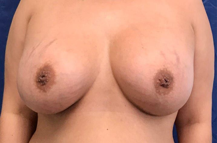pair of breasts after breast augmentation