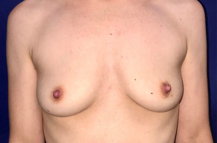 pair of breasts before breast augmentation