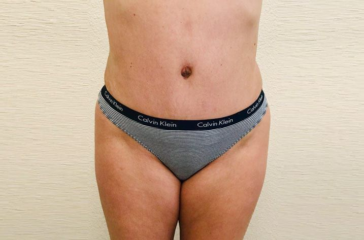 woman with tummy tuck results