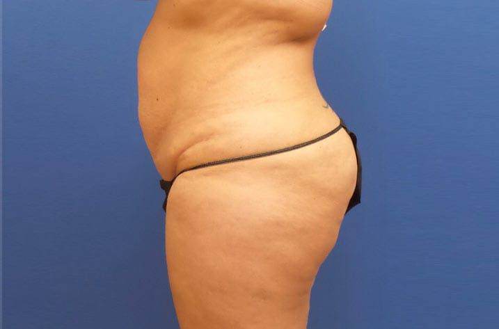 woman with stomach fat before tummy tuck procedure